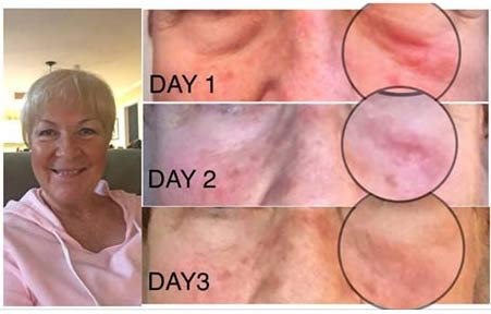 CTFO CBD Skin care results