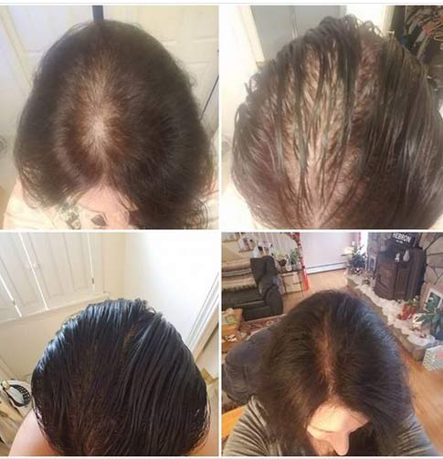 CTFO CBD Hair Growth System with Anagain Pictures