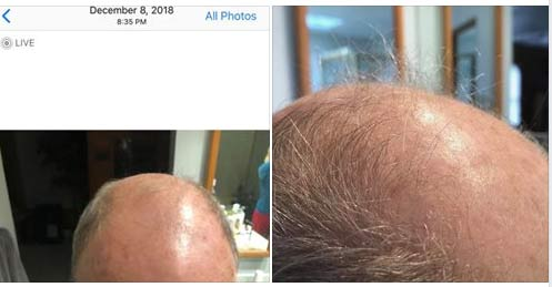 CTFO Hair growth products with Anagain