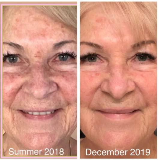 CTFO Anti-Aging Vitamin C CBD Serum