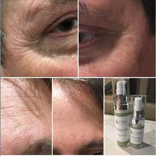 CTFO CBD Insta-Lift Wrinkle Remover results
